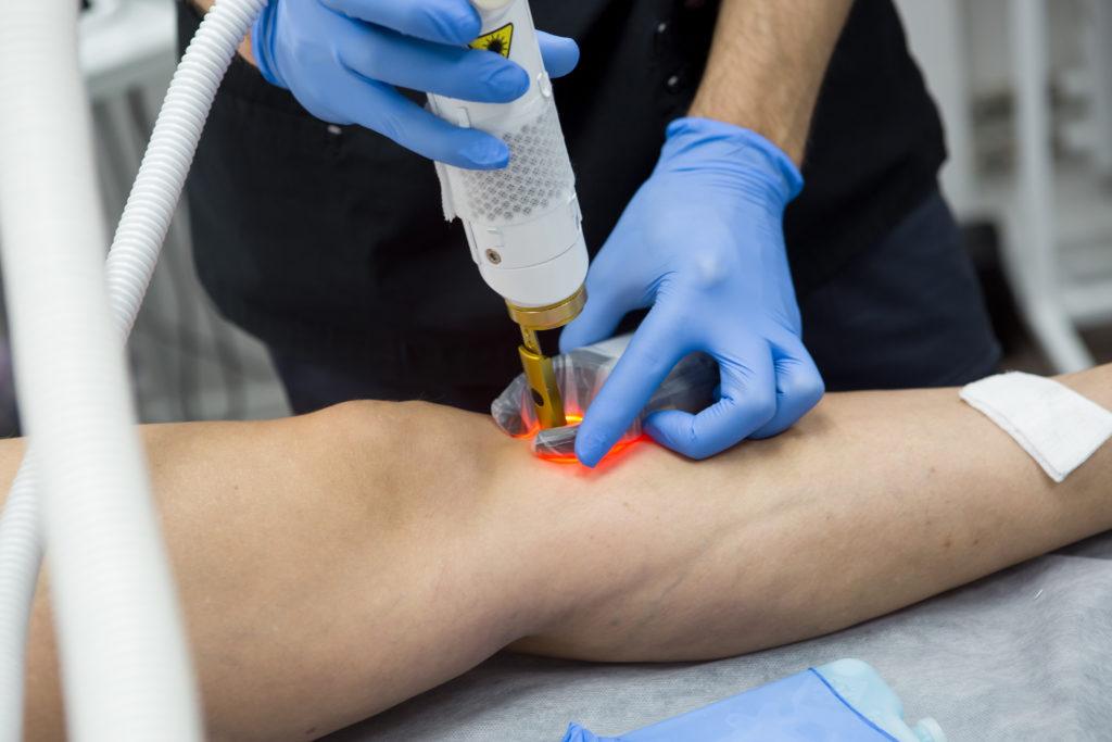 Mit einem Lasergesrät werden Besenreiser auf einem Bein behandelt. (Venenerkrankungen)