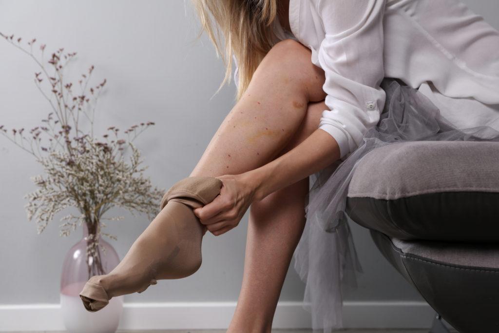 Eine Frau sitzt auf einem Sofa und zieht sich Kompressionsstrümpfe an. Ihr Bein hat viele blaue Flecken. (Venenerkrankungen)