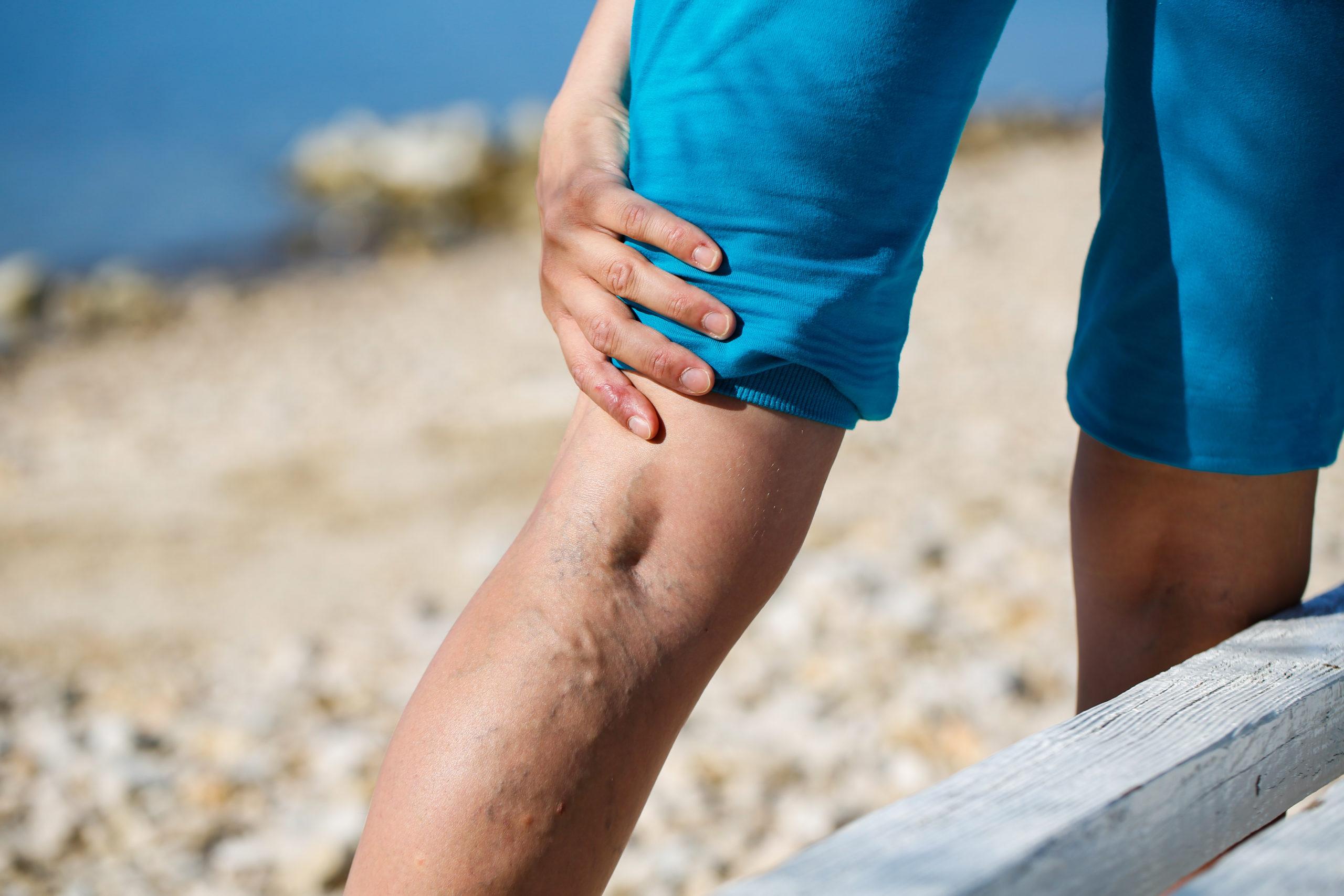 Eine Frau geht am Strand spazieren und hält sich schmerzvoll die Venen auf ihrem Bein. (Venenerkrankungen)