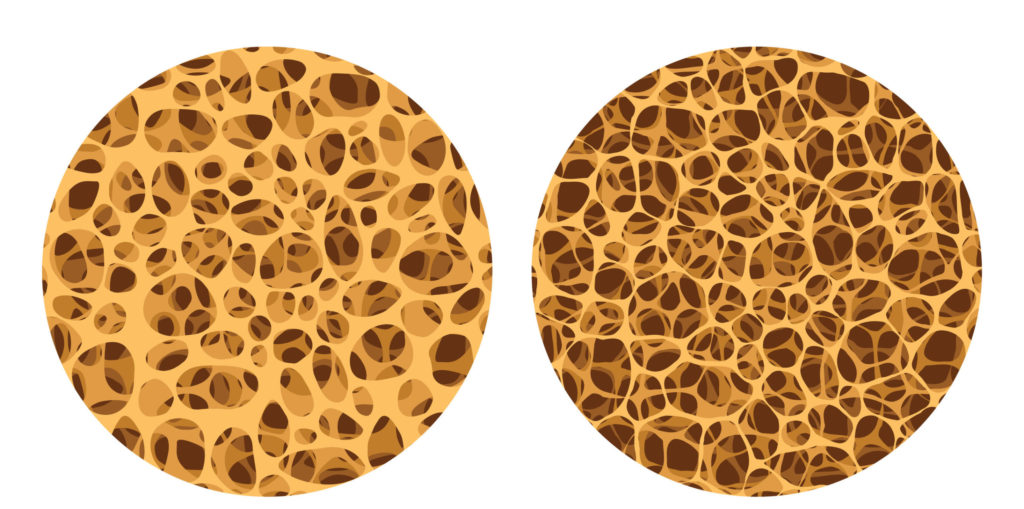 Ein Knochen auf Zellebene: Der Schwund durch Osteoporose ist klar erkennbar.